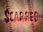 스카드 (scarred)